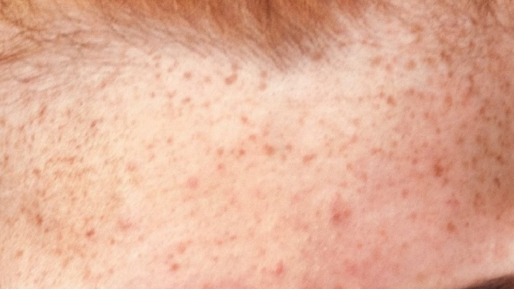 What To Use For Baby Acne
